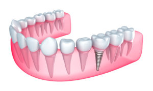 Dental implants in Manahawkin, New Jersey, are one of the best ways to rebuild a complete smile.
